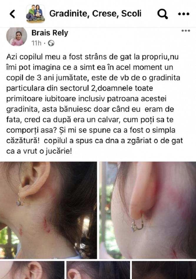 Fetiţă de 3 ani rănită la o grădiniţă privată